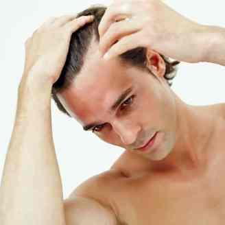 Caspa cuero cabelludo