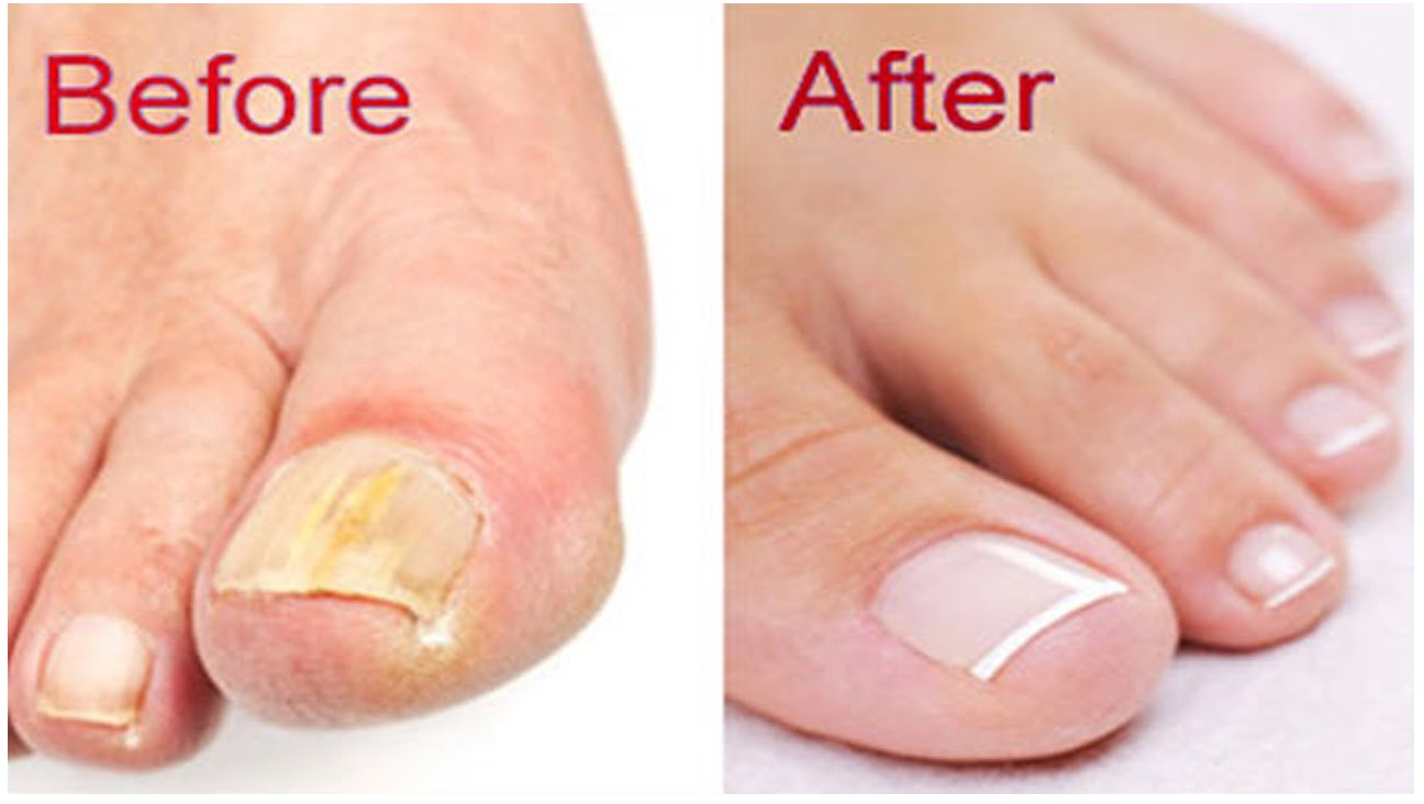 Home Remedies For Nail Fungus Home Remedies 2 U