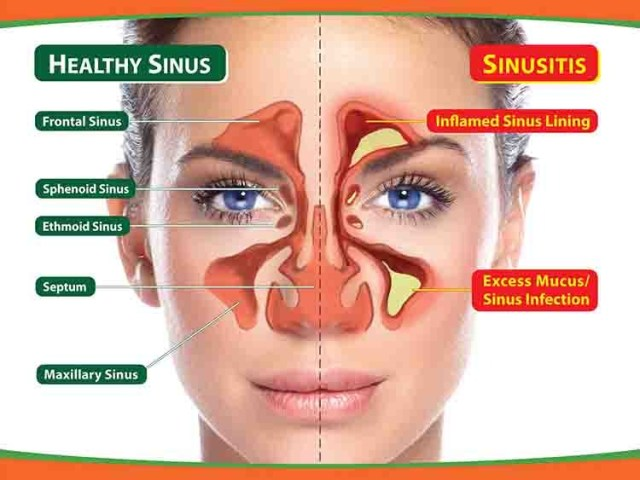 Question - Tinnitus, blocking in nasal tract, feeling of excessive mucus even after expulsion, dryness in nostrils 1