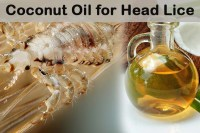 Coconut Oil for Head Lice: 8 Best Uses That Actually Work ...