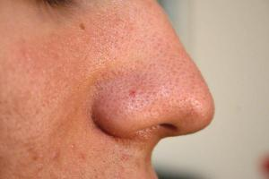 Nose-Blackhead