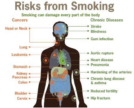 Quitting Smoking – Benefits and Body Health Timeline