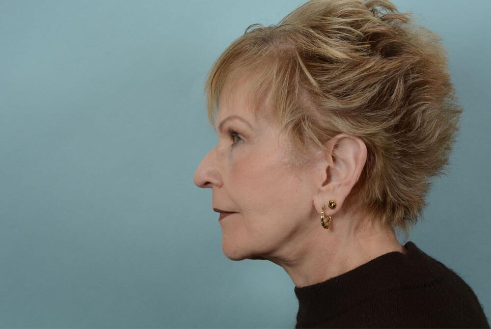 Neck Lift Johns Hopkins Facial Plastic and Reconstructive Surgery
