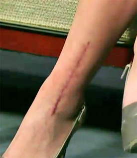 One of the scars on Kaley Cuoco's leg, shown in the video above.