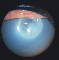 A corneal ulcer.