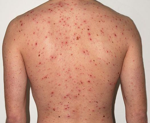 Chickenpox_Adult_back