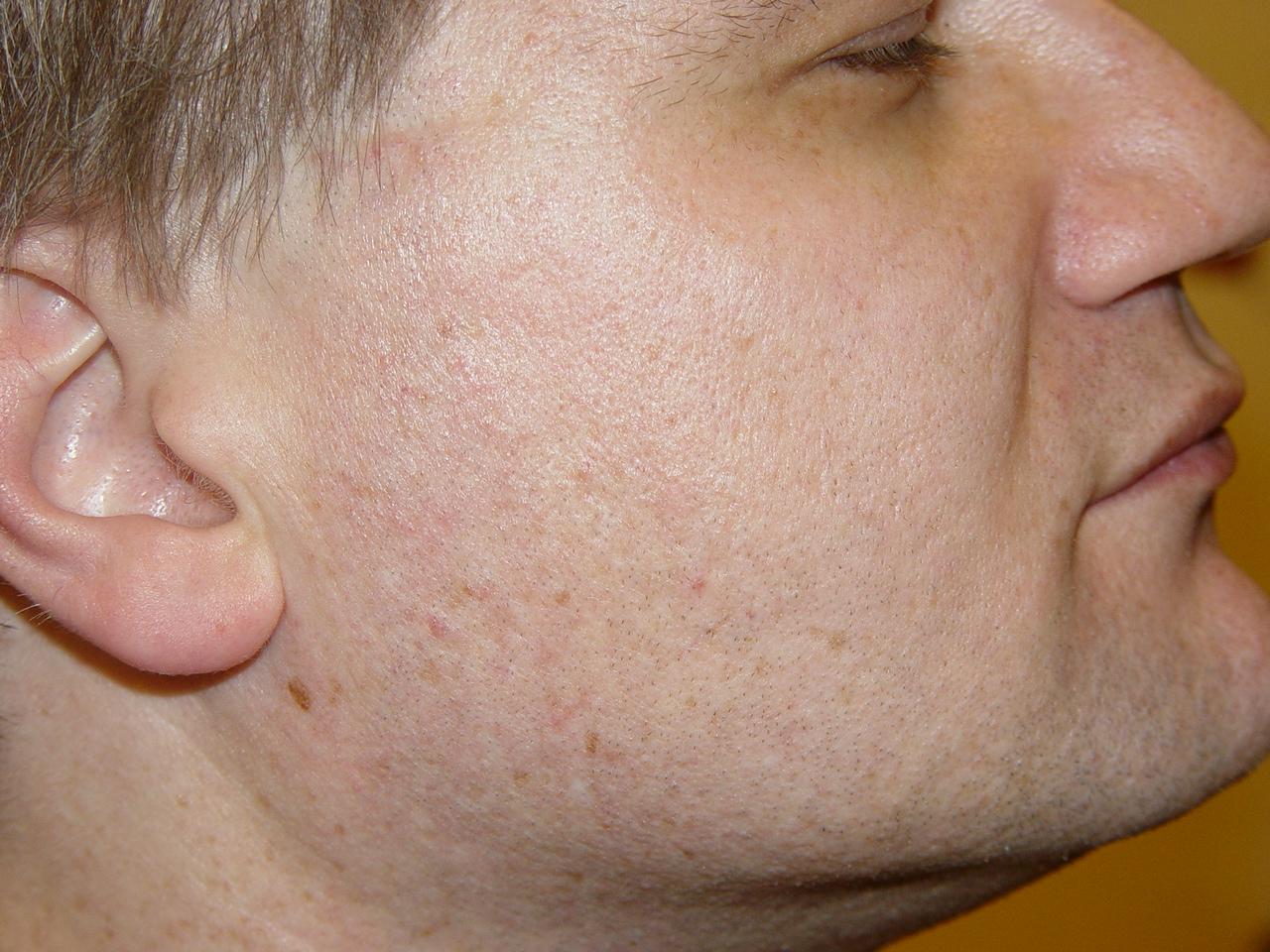 Жирная кожа с расширенными порами как лечить