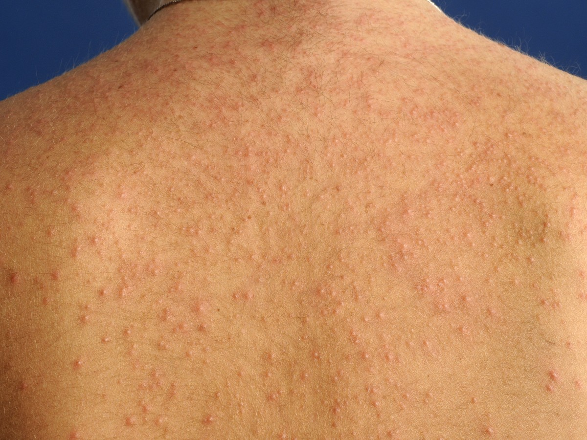 Rode Schimmel Pseudomonas Folliculitis - Pictures, Photos