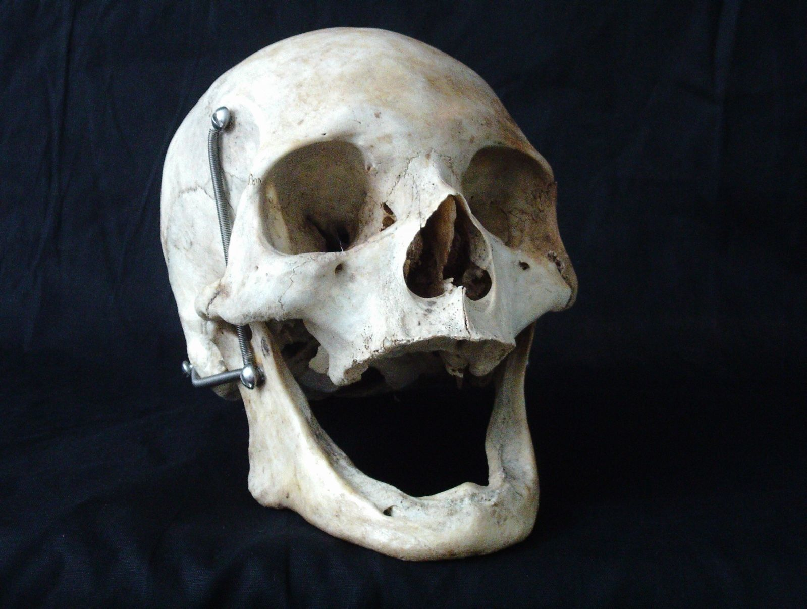 Human Skull How To Obtain A Real Human Skull A Guide For Buyers