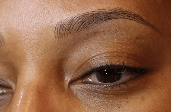 Gel Skin Microblading Is Changing Up The Eyebrow Game