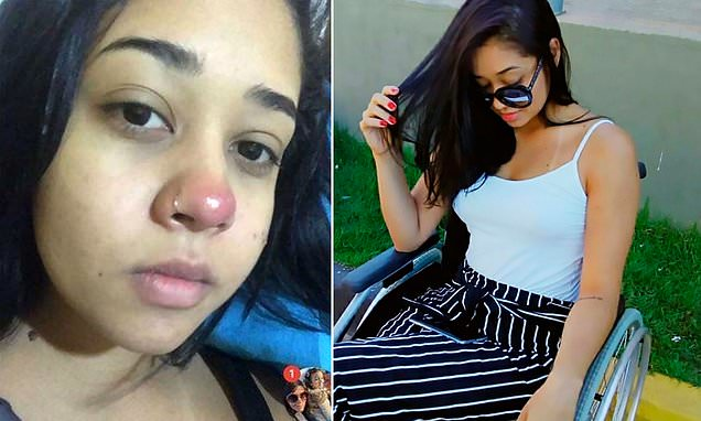 Woman, 20, left in wheelchair for life after getting nose pierced