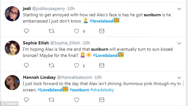 Love Island viewers voice concern over Alex\u0027s ever-worsening sunburn