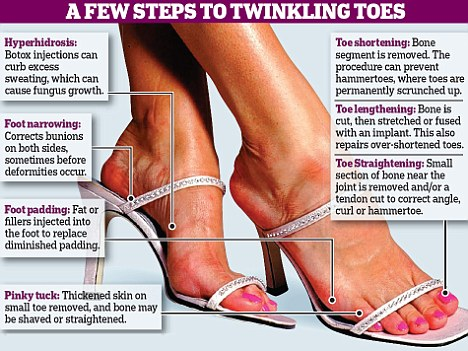 Shoes Too Tight Get A Smaller Size Foot Daily Mail Online