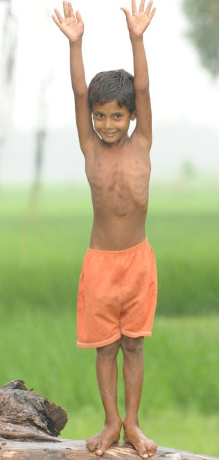 Deepak Kumar Paswaan who was operated on a year ago to free him of his parasitic twin