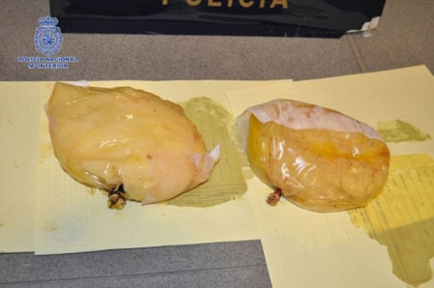 Removed: Cruel traffickers forced the 28-year-old Panamanian woman to undergo surgery where several bags of the Class A drug were inserted beneath her skin - much like a breast implant