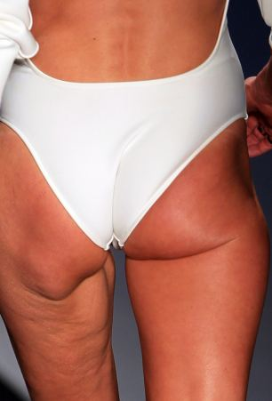Slack: The Brazilian model's derriere lacked healthy muscle tone and was riddled with cellulite