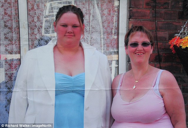 As More Teenagers Have Weight Loss Surgery A Horrifying