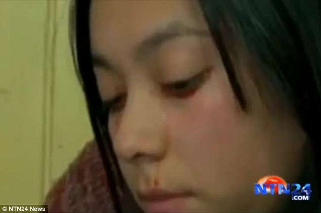 Her family is asking for financial help so she can undergo treatment from appropriate experts