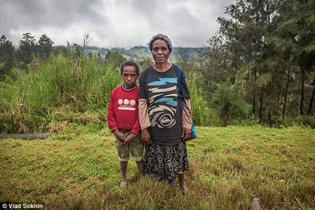 Emate, pictured with her youngest son, Dikon, was accused of using sorcery to kill her husband. Four male relatives including three of her sons brutally attacked her, after which she had to flee her village with her youngest boy and pay for her own hospital treatment