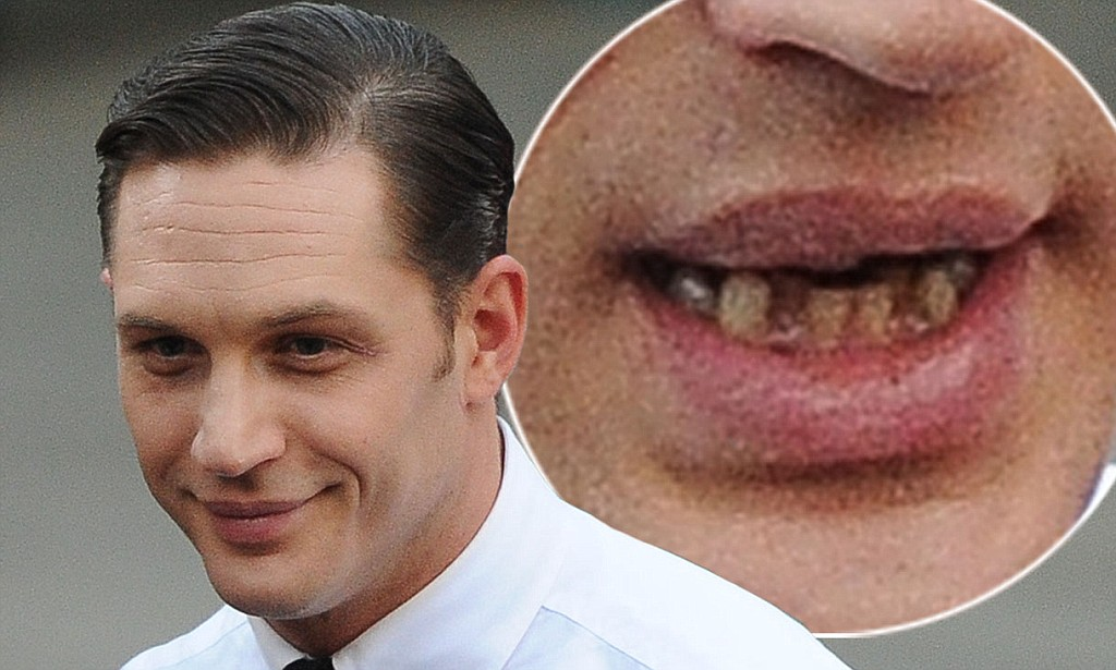 Tom Brady Wallpaper Iphone X Tom Hardy Teeth For Pinterest