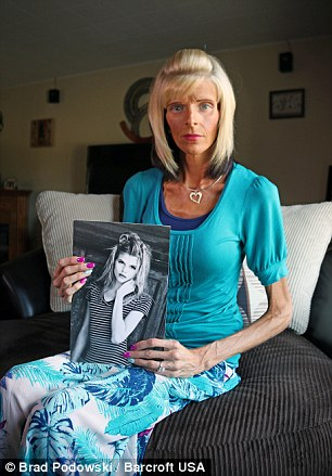 Lisa Brown is starving to death because of superior mesenteric - sma syndrome
