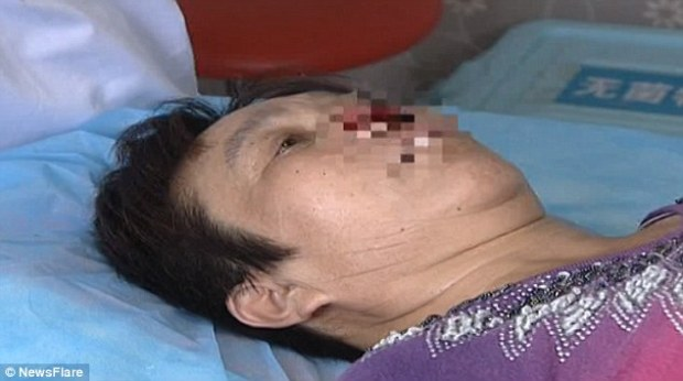 The entire nose, including the nasal septum, soft triangle and nose tip were swallowed by Ms Yang's husband