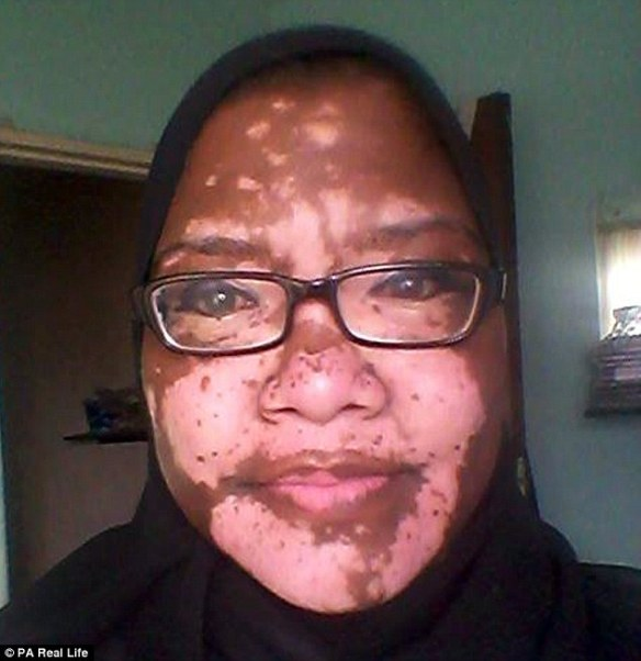 Jasmiena Gyer, 40, from Cape Town, published this selfie on Facebook last week as part of a decision to 'stop hiding' and live her life after years of struggling with depression due to the skin condition vitiligo