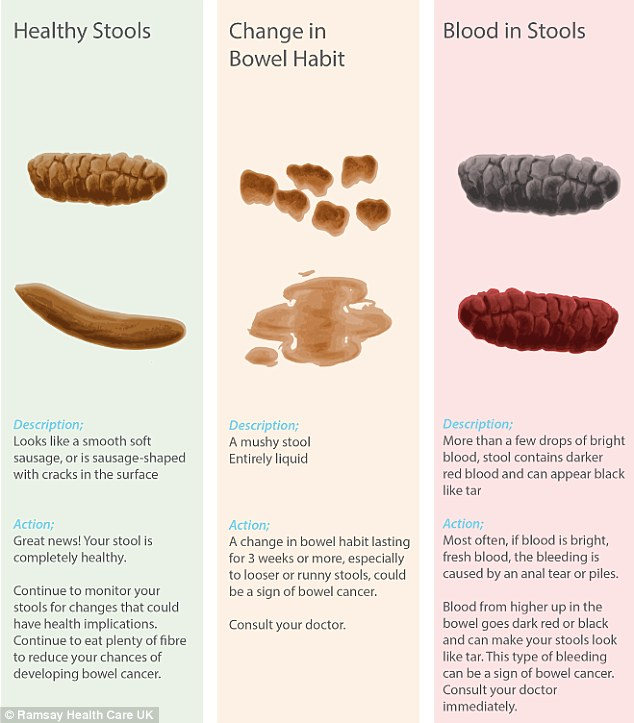 Poo chart reveals what\u0027s normal and what could be a warning sign of