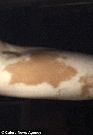 'They said my skin looked like a cow's' Natalie's arm before she had treatment