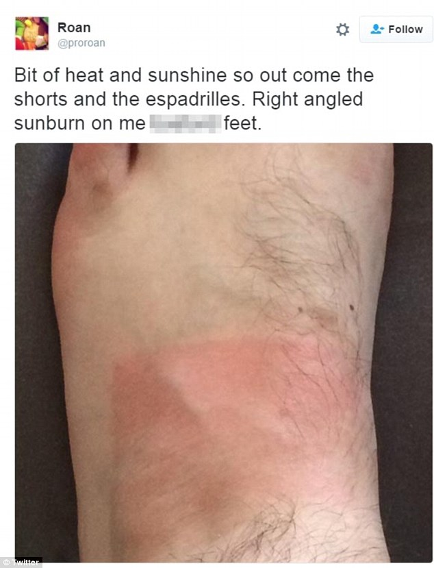 Sunburn victims share images of their skin on social media