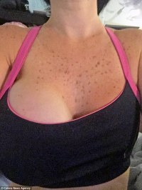 Cocktail waitress, 33, left with just one breast after her ...