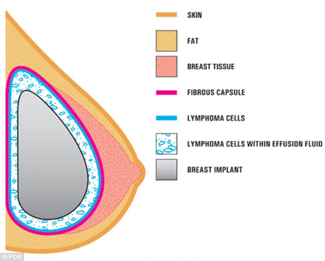 Textured breast implants might be causing breast cancer Daily Mail