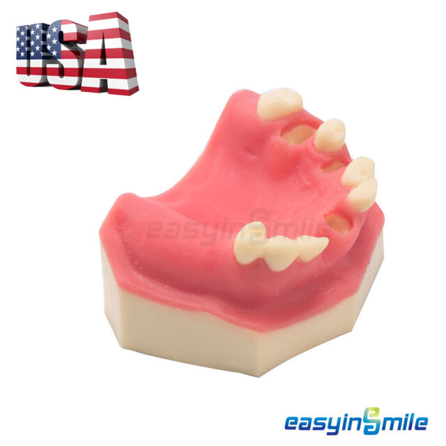 Dental Implant Practice Lower Jaw Typodont Teeth Model With Gingiva