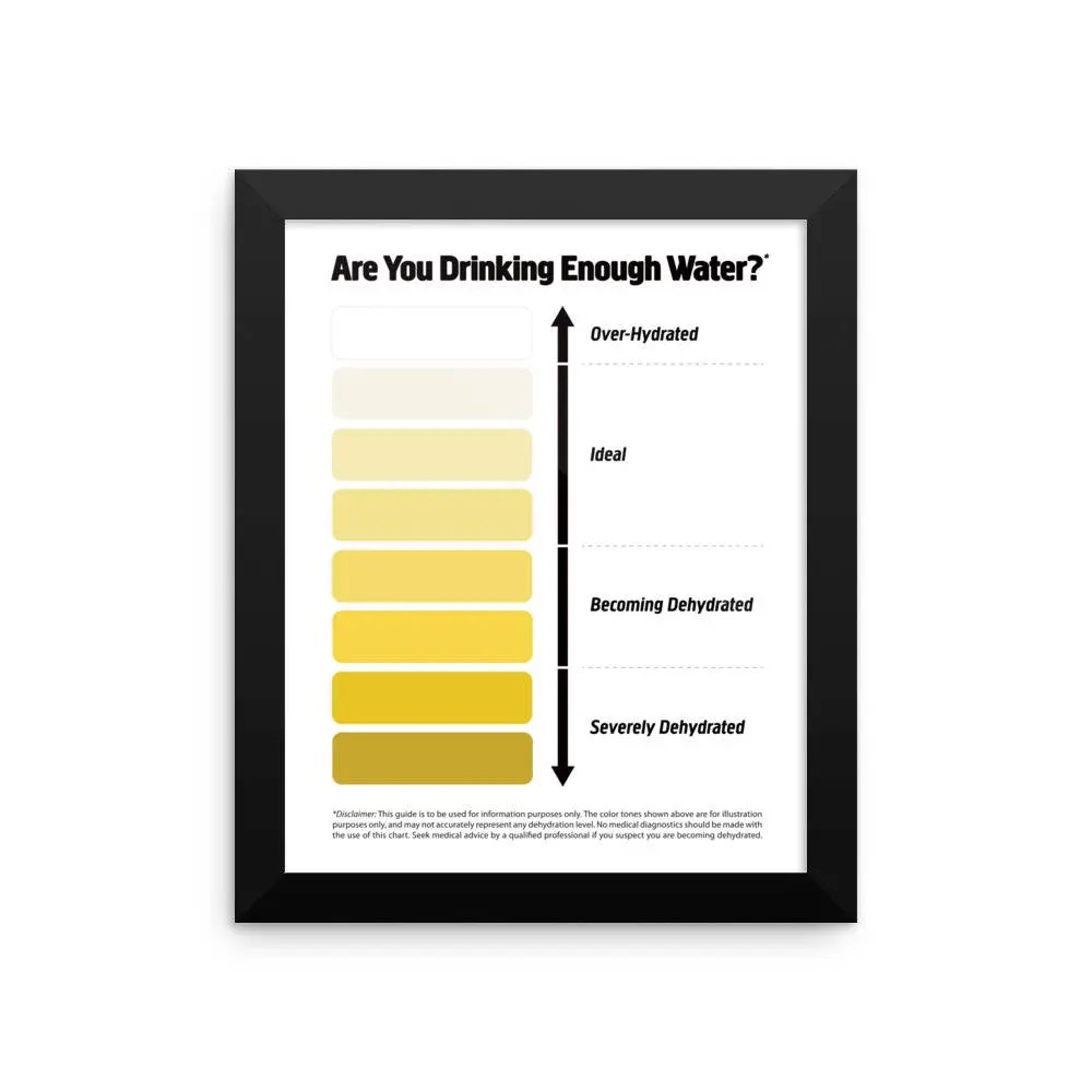 Framed Urine Color Chart Pee Color Chart Water Intake Chart Etsy