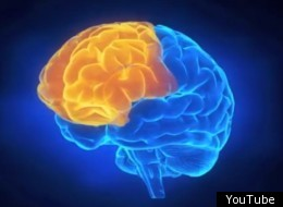 image of a human brain