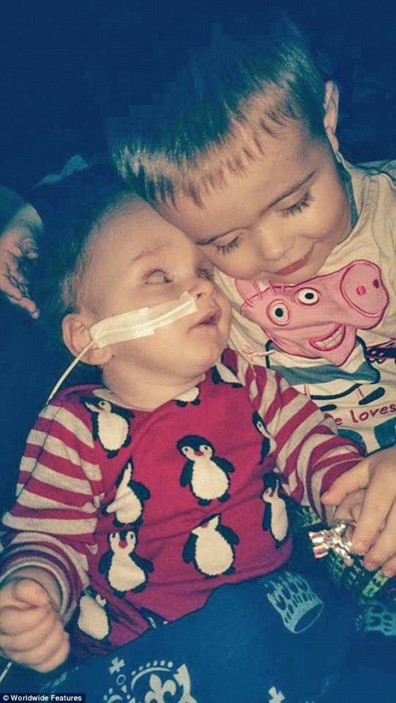 """بالصور : طفل ولد بدون """"دماغ"""" توقع الأطباء وفاته يُدهش الجميع بنطق كلمة """"أمي"""" O-TFLYWLDBDWNDMAGH-570"""