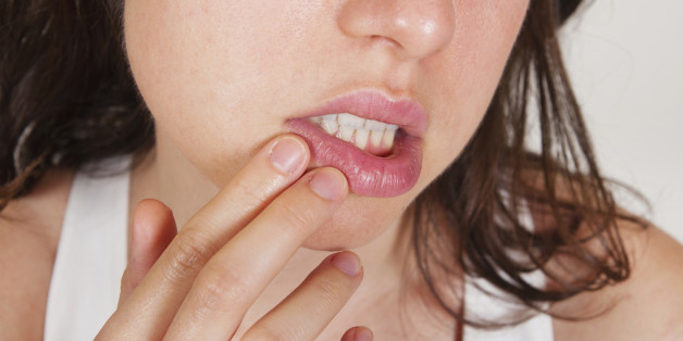 Be Kissing Hsv2 Can Transmitted By