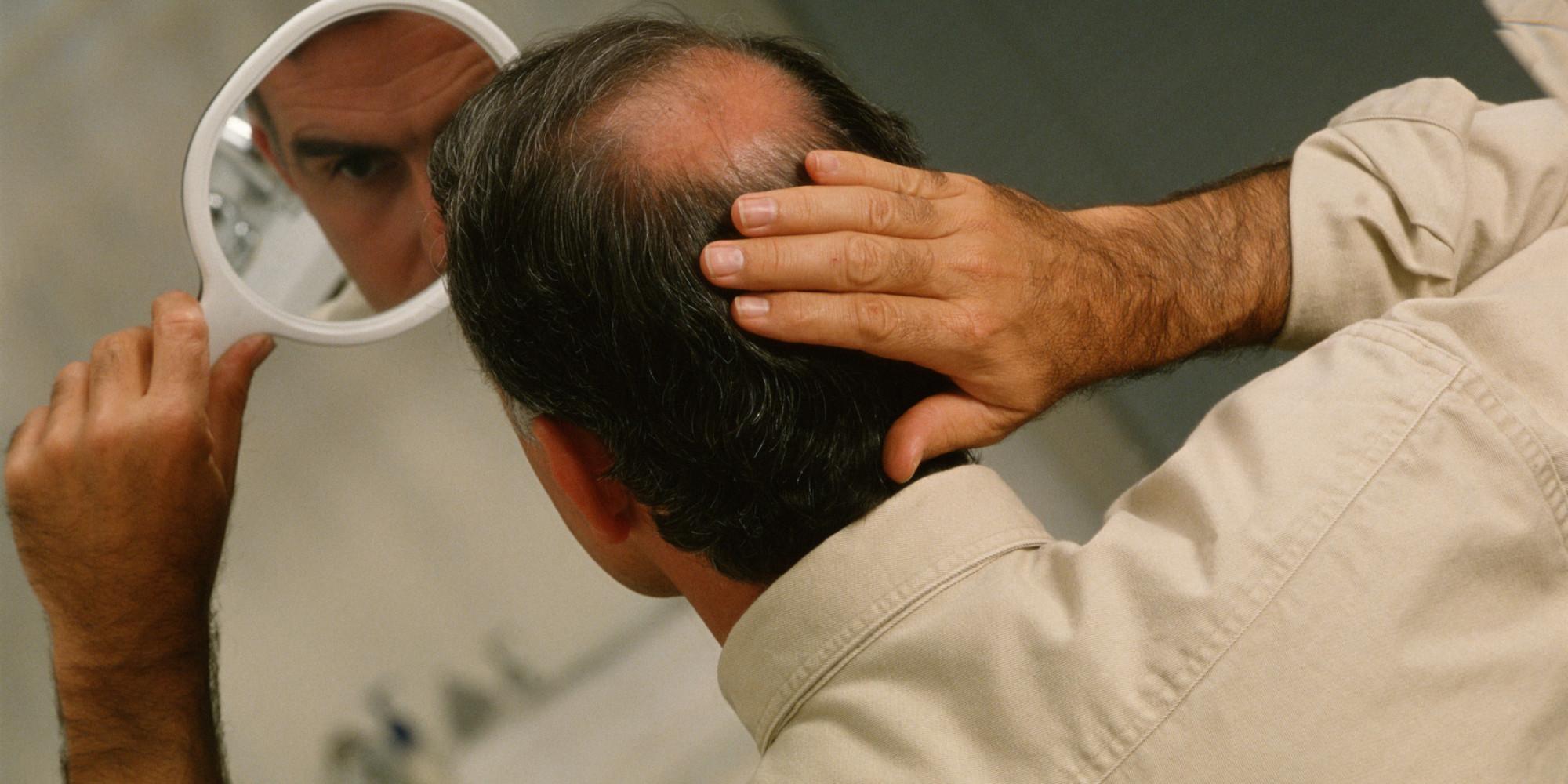 Hilfe Bei Schuppen Und Haarausfall
