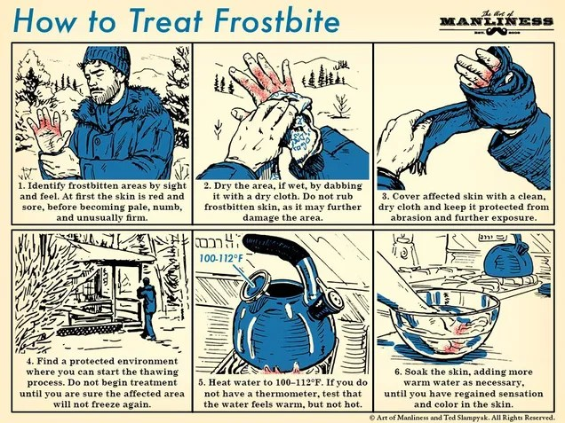 This Graphic Shows You How to Treat Frostbite - Utter Buzz!