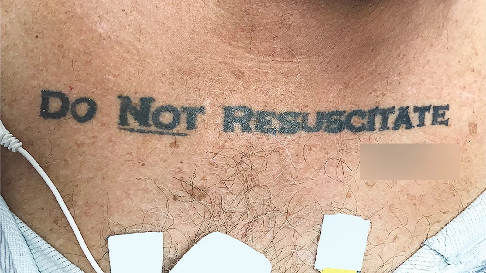 Calligraphy Tattoo Artist Toronto Unconscious Patient With Do Not Resuscitate Tattoo Causes