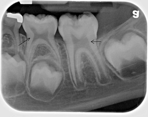 Newborn Baby Baby Teeth Xray Biology Is This Image About Child Teeth Development