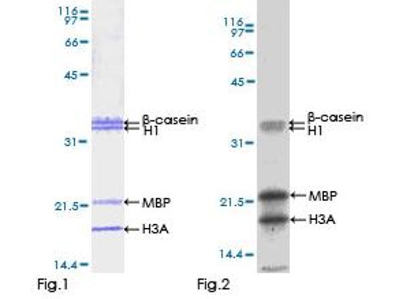 Human serine/threonine Kinase 33 (STK33) Protein (GST tag