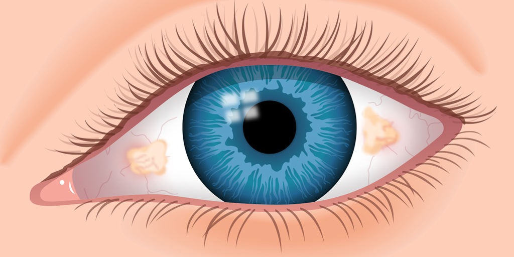 Pinguecula (Yellow Bump on Eye) - Definition, Causes and Removal