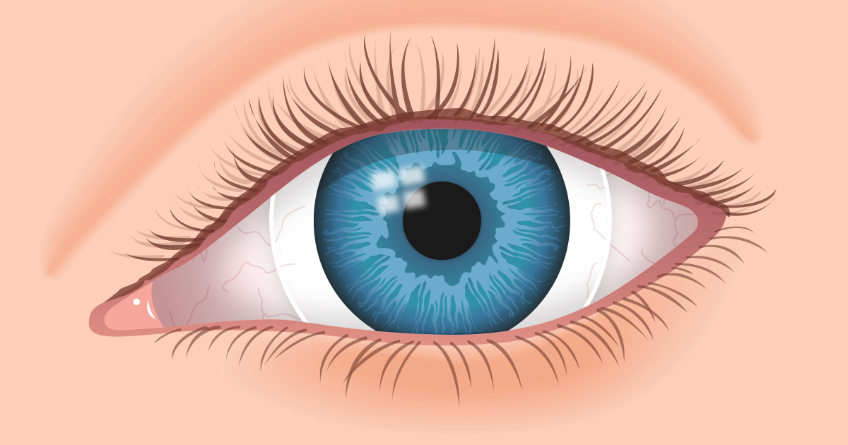 Contact Lenses for Hard-to-Fit Eyes - AllAboutVision