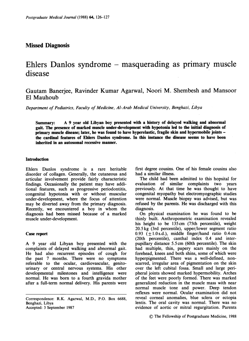 Ehlers Danlos Syndrome Neuromuscular Involvement In Various Types Of Ehlers Danlos