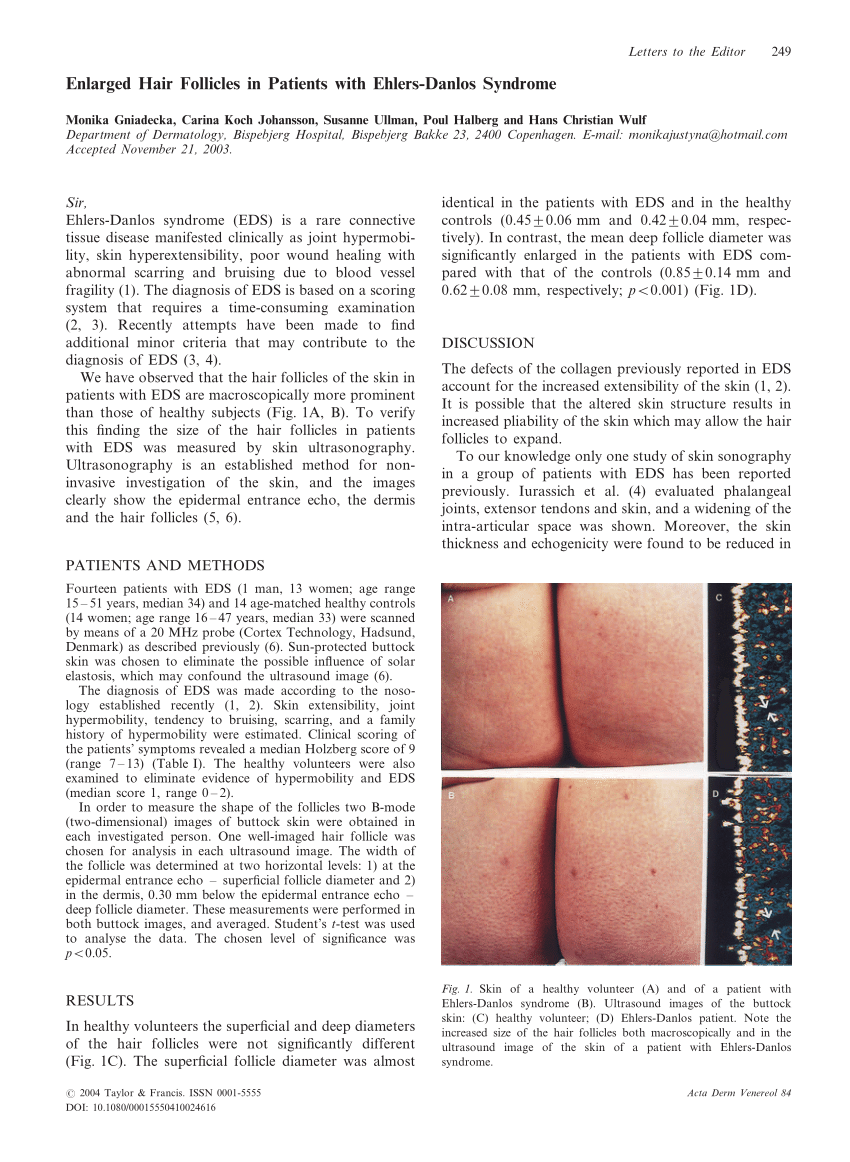 Ehlers Danlos Syndrome Pdf Enlarged Hair Follicles In Patients With Ehlers Danlos Syndrome