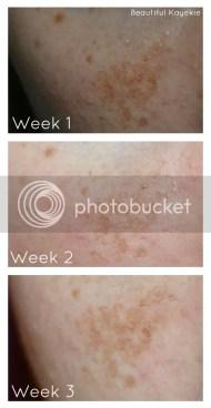 Garnier Dark Spot Corrector Review week 3 update