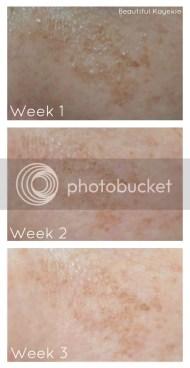 Garnier Dark Spot Corrector Review 3 week update