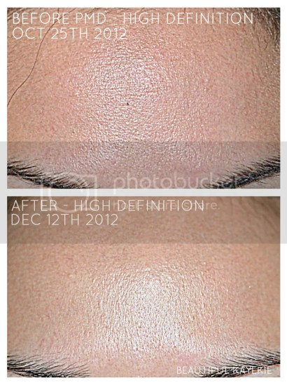 PMD Personal Microderm before and after high definition