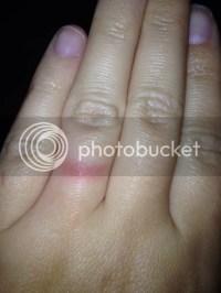 The most beautiful wedding rings: Wedding ring finger rash